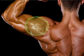 lateral deltoid