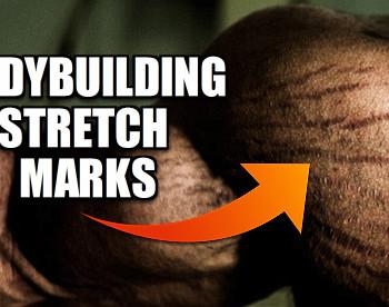 bodybuilding stretch marks