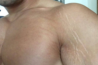 stretch marks from gaining muscle